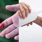 Nếu không may bị đứt tay thì đây chính xác là những gì bạn phải làm