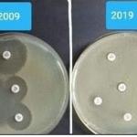 """""""Thử thách 10 năm"""" cho thấy vi khuẩn đã không còn đáp ứng với thuốc như trước"""